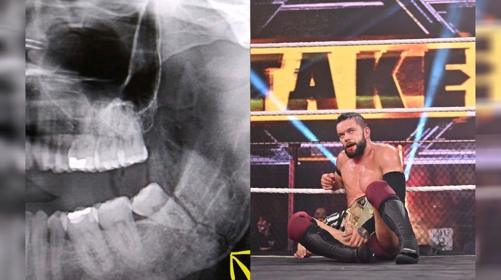 NXT Champion Finn Balor suffered a broken jaw after fight against Kyle O'Reilly at TakeOver 31